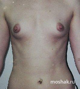 Сколько стоит по увеличению груди в краснодаре